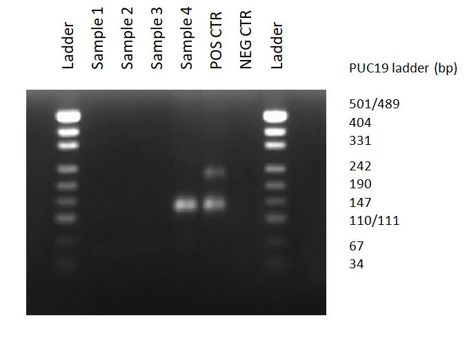 Agarose gel electrophoresis, after PCR with MycoDiag assays, allows to observe bands between 121 to 230 bp, in case of Mycoplasma contamination of cell culture supernatants.